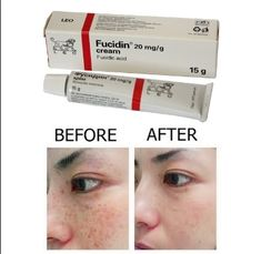 We answer all your questions about Fucidin Cream! Beauty Care, Beauty Skin, Beauty Hacks, Health And Fitness Apps, Skin Mask, Beauty Consultant, Tips & Tricks, Face Skin Care, Yoga Poses