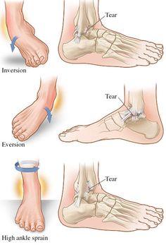 Chandler Chiropractor - Ankle Sprain