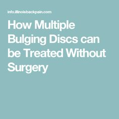 How Multiple Bulging Discs can be Treated Without Surgery