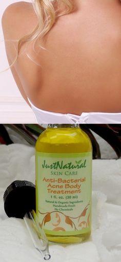 Anti-Bacterial Body Acne Treatment