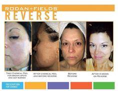 Reverse regimen.... Check out before and after pics http://lbenner.myrandf.com