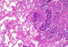 non small cell lung cancer adenocarcinoma