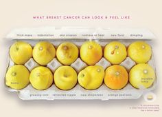 This Viral Photo of Lemons That Helps Women Learn About Breast Cancer Symptoms Has Been Shared More Than 22,000 Times