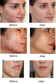 This Acne Scar Remover Cream is applicable for acne or pimple scars, insect bite marks, stretch marks and surgical scars. Pimple Scars, Acne Scars, Pimples, Scar Removal Cream, Acne Scar Removal, Banana Face Mask, Get Rid Of Blackheads, How To Get Rid Of Acne, Acne Remedies