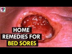 with bedsore bed mebo sores mebt treatment