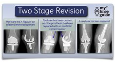Two stage revision surgery to treat an infected knee replacement is described. The success rate is. Knee Replacement Surgery, Hip Replacement, Knee Arthritis, Rheumatoid Arthritis, Knee Surgery, Knee Pain, Health Diet, Nurses, Healthy Lifestyle