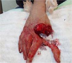Heridas por arma blanca primeros auxilios
