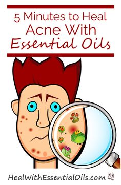 5 Minutes to Heal Acne With Essential Oils