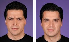 Before and after photos of Botox injection. Call our office today to schedule your appointment  (503) 297-6511 www.portlandfacedoctor.com