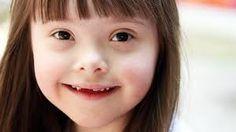 Resultado de imagen para ninas con sindrome de down
