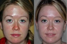 Natural Skin Whitening Treatments