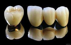 Giá thành răng sứ titan