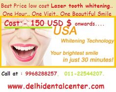 #Tooth_Whitening_Delhi #Tooth_Whitening_India #Laser_Tooth_Whitening_Delhi #Dentist_Delhi #Dentist_India http://goo.gl/3GWHWH