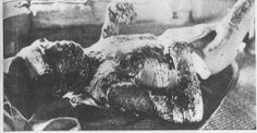 A badly burned nuclear bomb victim lies in quarantine on the island of Ninoshima in Hiroshima, Japan, 9,000 meters from the hypocenter on August 7, 1945, one day after the bombing by the United States.