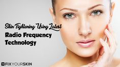 Radio Frequency Skin Tightening is on the rise due to the incredible benefits it offers. There are several radio frequency skin tightening devices today that claim to make you look ageless even if your years are increasing. #RadioFrequencySkinTightening #SkinTightening #Skincare #Beauty #FixYourSkin