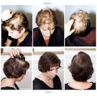 Question: Am I eligible for the Harklinikken treatment?  We take '3' variables into consideration:  (1) Your Age (2) The size of the area that is thinned out and donor hair (3) Your scalp condition  Proceeding the above assessment, if successful, we will proceed with the necessary treatment plan custom to you!