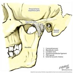 Temporomandibular joint (illustration) | Radiology Case | Radiopaedia.org Tmj Headache, Skeleton System, Skull Anatomy, Rad Tech, Mouth Guard, Radiology, Neck Pain, Monogram Logo, Physical Therapy