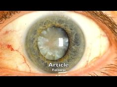 HOW TO USE CASTOR OIL TO DISSOLVE CATARACTS AND GET 20 20 VISION! - YouTube