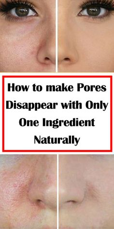 Make open pores disappear in only 3 days with these natural ingredients Enlarged pores can ruin your appearance since it is unpleasant to look most of the time, Perfectly Posh, Skin Care Remedies, Natural Remedies, Pimples Remedies, Holistic Remedies, Health Remedies, Natural Skin Toner, Natural Face, All Natural Skin Care