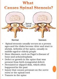 I have congenital and injury stenosis in the cervical and lumbar spine. I also have a benign lumbar spinal tumor. There are 12 ruptured/herniated discs in my lumbar thoracic and cervical spine. I have been having bad head pain and blacking out because Sciatic Nerve, Nerve Pain, Cervical Spinal Stenosis, Spinal Stenosis Treatment, Spinal Decompression, Spinal Canal, Spondylolisthesis, Hernia, Degenerative Disc Disease