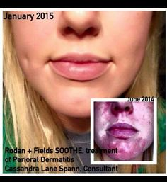 Now this is flat out fantastic!  She went from serious painful and embarrassing inflamed, broken out skin from a dermatitis issue that no prescription nor any other product had ever been able to heal...and here she is now!!!!! www.laurasacharnoski.myrandf.com CHANGING SKIN...CHANGING LIVES
