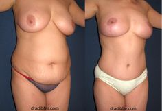 Mommymakeover, Breast Lift (Mastopexy) & Tummy Tuck