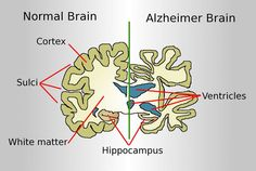 Researchers Discover Link Between Stress and Alzheimer's Disease   Neuroscience News  September 16, 2015.  The research contributes to further understanding the potential relationship between stress and Alzheimer's disease, a disorder believed to stem from a mix of genetic, lifestyle and environmental factors. The image is for illustrative purposes only.
