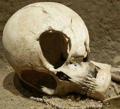Galería extraterrestre - Evidencia de Alien / cráneo extranjero desde Sudán