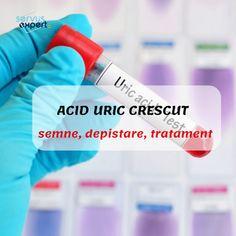 Servus Expert Uric Acid, Personal Care, Calculus, Personal Hygiene