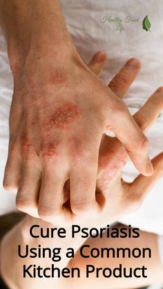 Cure Psoriasis Using a Common Kitchen Product - Healthy Food Life Natural Cure For Psoriasis, Home Remedies For Psoriasis, What Is Psoriasis, Psoriasis Symptoms, Psoriasis Arthritis, Psoriasis Cream, Psoriasis Diet, Plaque Psoriasis, Natural Cures