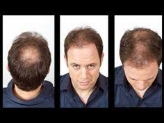 Kyran Bracken on Viviscal Hair Fibers