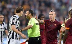 Juve-Roma, una bagarre all'italiana con punte di masochismo #seriea #rocchi #juventusroma
