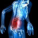 Spinal Stenosis and Fibromyalgia