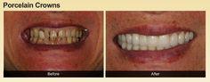 porcelien crowns  #before&after #newsmile  #healthyteeth #oralcare #localdentist #hawaii