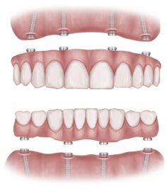 Протезирование по технологии All-on-4. Метод имплантации зубов по новой технологии все на четырех в стоматологии Ami Clinic.