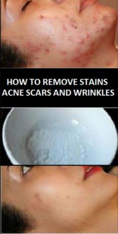 Face Mask Which Can Magically Remove Acne Scars, Stains and Wrinkles after Second Use!