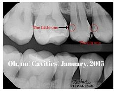 X-ray Proof of my Cavity Healing Diet–Can You Cure Tooth Decay?