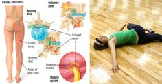 Workout For Sciatica Pain While it may seem counterintuitive, exercise is usually better for relieving sciatic pain than bed rest. Sufferers can rest for a . Sciatica Stretches, Sciatica Pain Relief, Sciatic Pain, Sciatic Nerve, Back Pain Relief, Skinny Thigh Workouts, Thigh Exercises, Healthy Dieting, Diets