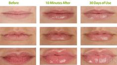 Before and after from using City Lips. You can get instant results after 10 mins of use!   • Instantly delivers dramatic plumping effects with HA Plumping Spheres • Stimulates new collagen development with twice the collagen peptides for long-term plumping • Provides instant fullness, definition, & hydration with long-lasting plumping benefits • Diminishes and fades the appearance of fine lines and wrinkles • Works safely, painlessly and without irritation or numbness