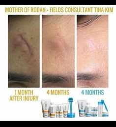 Rodan + Fields are great products to use on scars. This customer used the Reverse Regimen for 4 months and Redefine for 4 months. AMP MD was used for 8 months. AMP MD is proven to increase the effects of and regimen by 58%. All R+F products have a 60 day