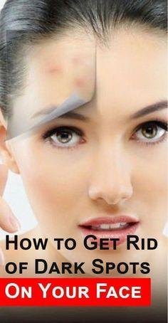 3 Effective Ways to Remove Sunspots on Face Sun Spots On Skin, Black Spots On Face, Brown Spots On Hands, Dark Spots, Perfectly Posh, Sunspots On Face, Spots On Forehead, Dark Under Eye, Love Your Skin