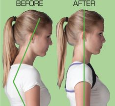 Carrying your head forward leads to tense neck muscles and pain. Posture Fix, Posture Support, Better Posture, Improve Posture, Posture Exercises, Back Pain Exercises, Scoliosis Exercises, Forward Head Posture Correction, Postural