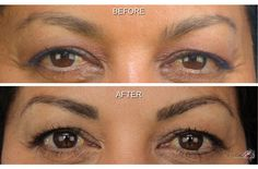MicroArt Semi Permanent Eyebrows.... Want to do this!!!