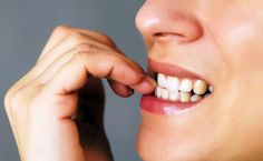 Nail biting, brushing too hard and using your teeth as tools are just a few of the bad habits that can harm your teeth and mouth. Get the top 6 worst habits for your mouth and find out how to break them. Dental Health, Oral Health, Dental Care, News Health, Dental Hygiene, Grow Nails Faster, How To Grow Nails, Natural Remedies For Anxiety, Natural Cures