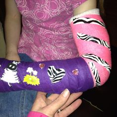 Colored medical tape to cover dirty part of cast that I can't clean. Stickers and zebra tape and gems as accessories. With the tape you can switch up colors, combos, patterns. Whatever you imagine. Broken Wrist, Arm Cast, Medical, Sibling, My Style, Cover, Tape, Fun, Design Ideas