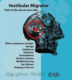 Natural Headache Remedies Vestibular migraine ~ The pressure and pain in my left ear is horrendous. I wish I could just pop it! herbal and Migraine Pain, Chronic Migraines, Migraine Relief, Chronic Illness, Fibromyalgia, Chronic Pain, Migraine Diet, Migraine Triggers, Complex Migraine