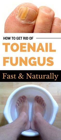 How To Get Rid Of Toenail Fungus Fast And Naturally Beauty Insiderorg