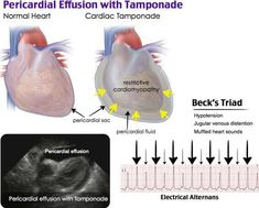 Pericardial Effusion with Tamponade Medicine Notes, Emergency Medicine, Internal Medicine, Cardiac Nursing, Nursing Mnemonics, Cardiac Sonography, Pericardial Effusion, Human Body Facts, Nursing Notes