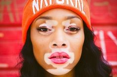 Inspiring! Chantelle Brown-Young (Winnie Harlow)