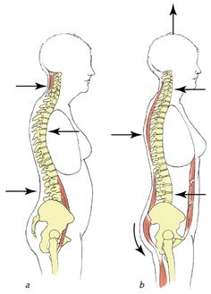 Axial Extension - a fifth type of spinal extension that requires proper breathing in order to execute. It is the least common type of spinal movement. b.	Slight simultaneous reduction of both primary and secondary curves of spine, which lengthens the spinal column beyond its neutral alignment; the overall length of the spine thus increases.